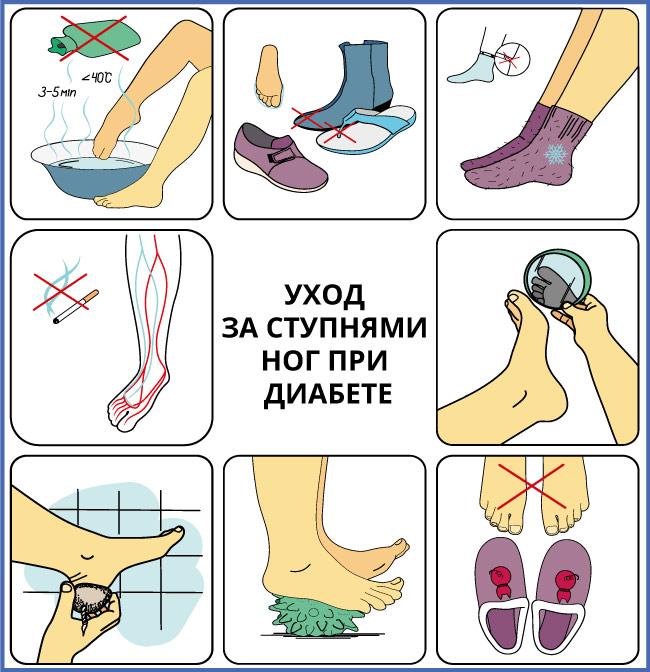 Как ухаживать за стопами ног при диабете