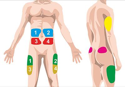 В какие части тела нужно делать инъекции инсулина?